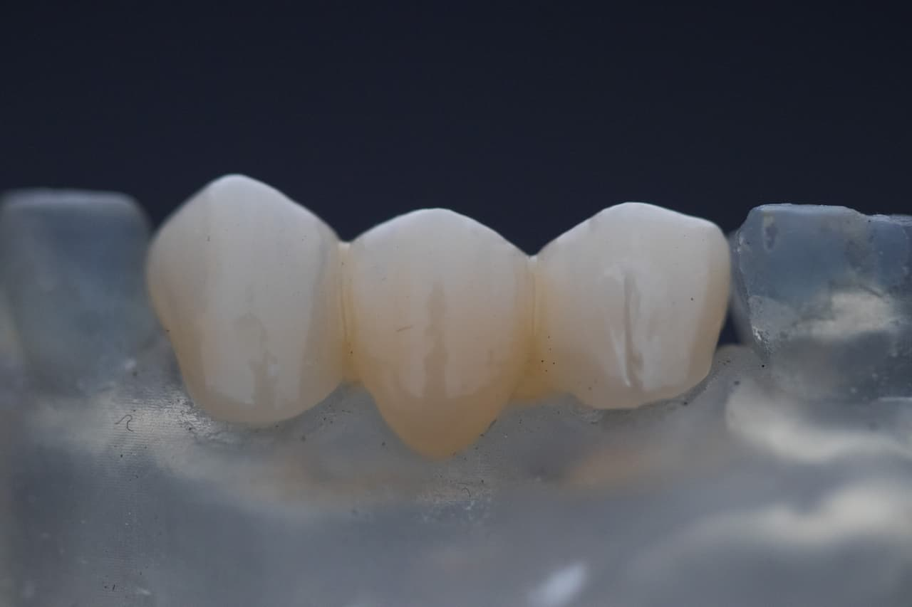 Mostek zębowy – wskazania, rodzaje, cena, porady
