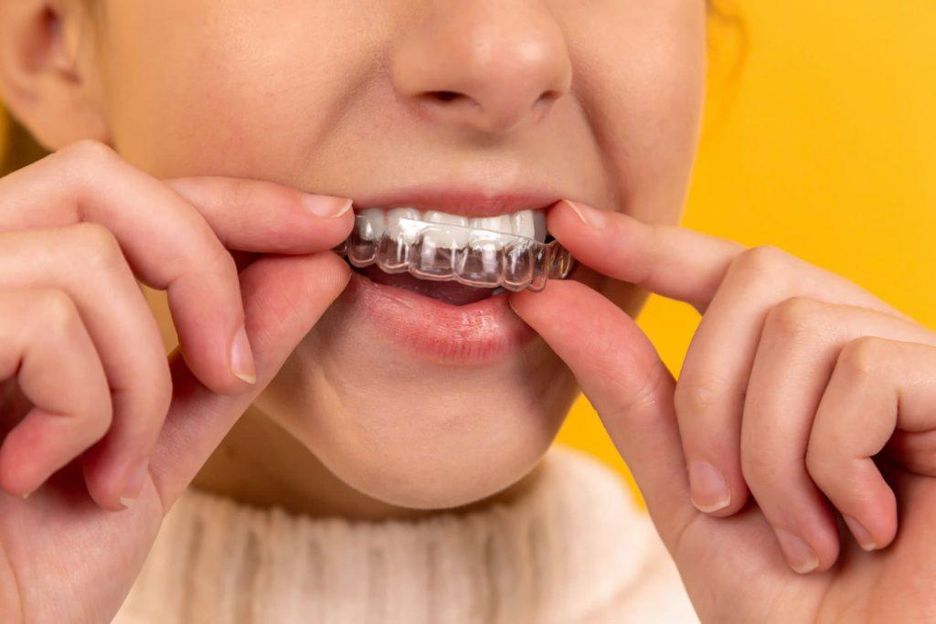 Wybielanie nakładkowe zębów – przebieg, czas trwania, efekty